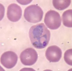 Sangre infectada con Plasmodium